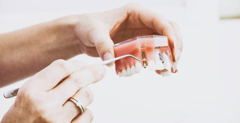 Prednost ugradnje implantata