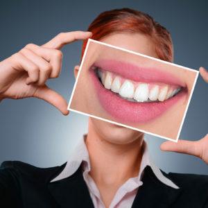 Kako odabrati idealne zubne krunice
