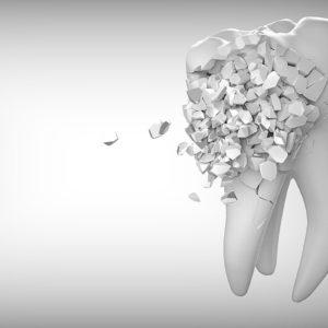 Uzroci pretjerane osjetljivosti zubi