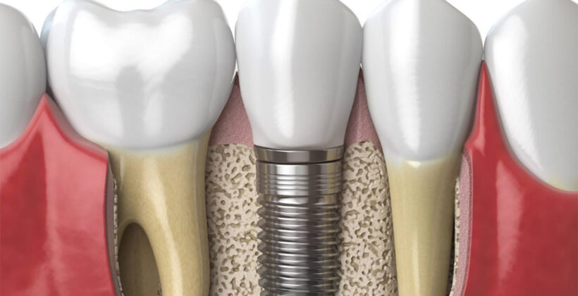Zapreke za ugradnju zubnog implantata
