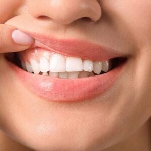 Povlačenje zubnog mesa – uzroci, simptomi i prevencija
