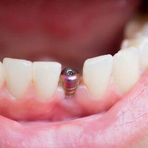 Ugradnja implantata – prednosti i nedostaci