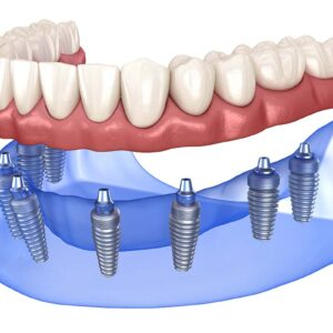 Glavni benefiti oralne kirurgije