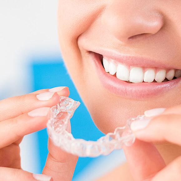 Udlaga za zube – kada se koristi i koliko nam pomaže